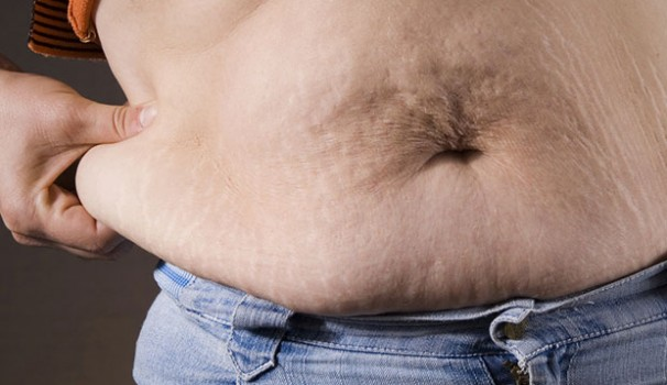 Is Bariatric Surgery Right for You